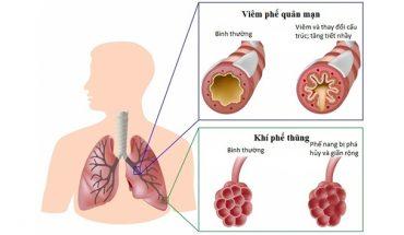 Tắc nghãn phổi mãn tính