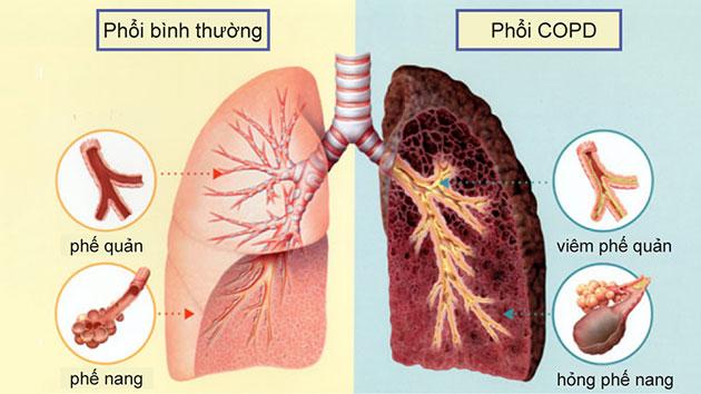 Lao phổi